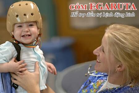 Điện nào đồ (EEG) – Phương pháp quan trọng nhất trong chẩn đoán động kinh